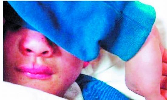 嘴唇 鼻子 鼻梁/小枫的鼻梁骨骨折了,鼻子和嘴唇都肿了。